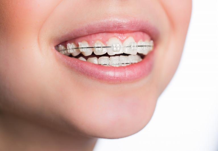 歯並び・矯正歯科
