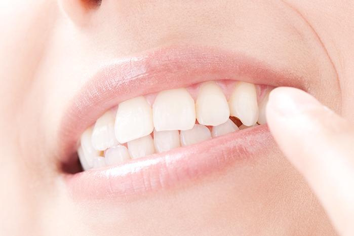 天然歯のような白い歯を提供します